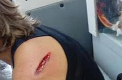 Mulher é atingida por tiro ao fazer caminhada em...