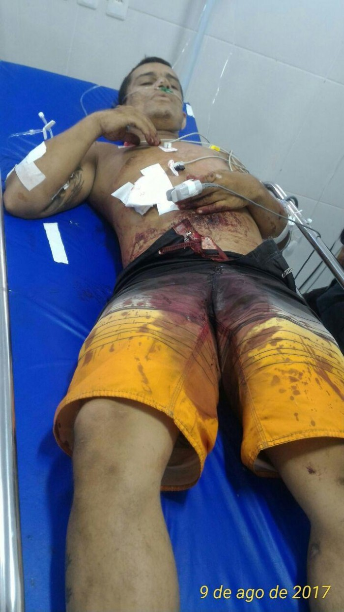 Homem é morto a tiros após esfaquear assaltante em Timon