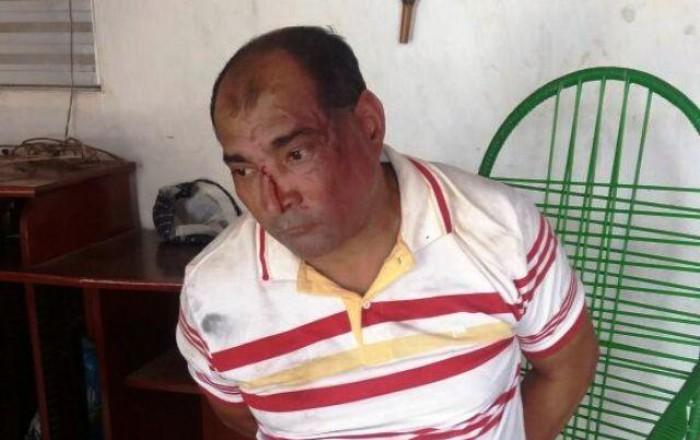 Homem mata mãe e filha com golpes de marreta em Codó-MA