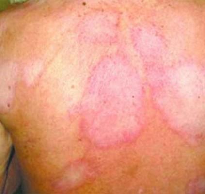 110 novos casos de hanseníase são diagnosticados...