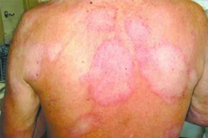 110 novos casos de hanseníase são diagnosticados no PI
