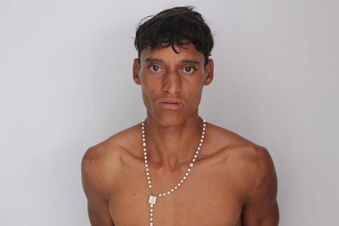 Homem é preso acusado de espancar enteado de 1 ano e 9 meses