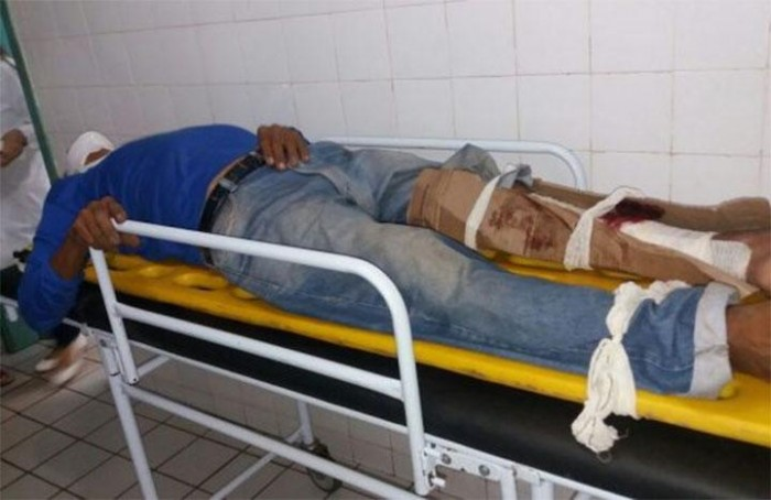 Acidente entre duas motos deixa duas pessoas feridas em José de Freitas