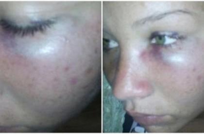 Homem espanca ex-mulher e a própria mãe em São Miguel do Tapuio