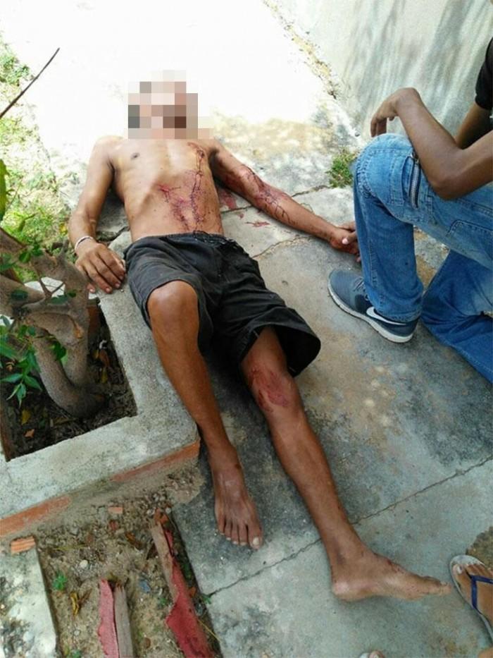 Mulher atinge ex-marido com duas tesouradas após ser agredida