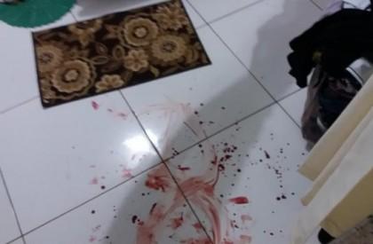 Ex-secretário é ferido a coronhadas em assalto no interior...