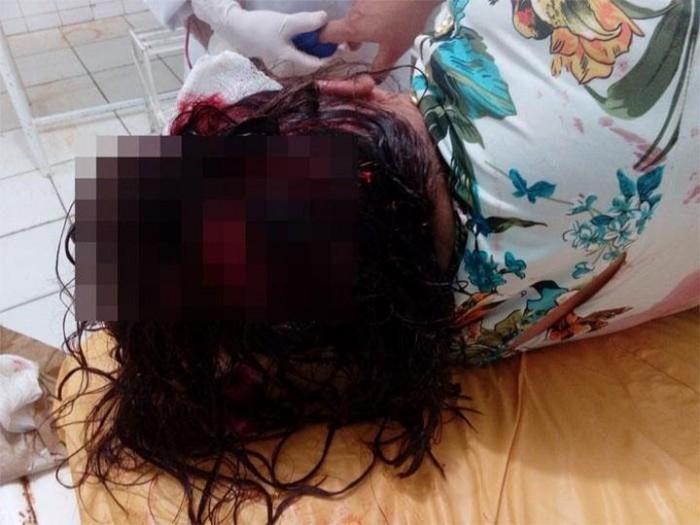 Homem tenta matar esposa com machado e comete suicídio em Betânia do Piauí