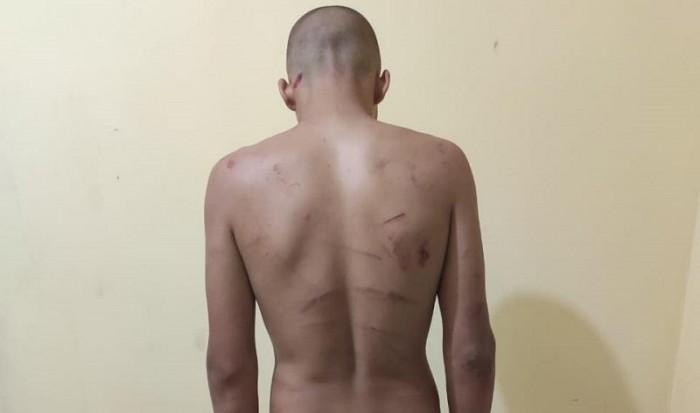 Homem é preso suspeito de torturar namorado adolescente